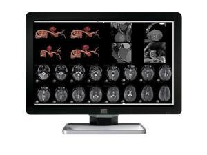 New Barco Coronis Fusion MDCC-4330 4MP LED Color Medical Diagnostic Radiology Display Monitor (K9301625A)