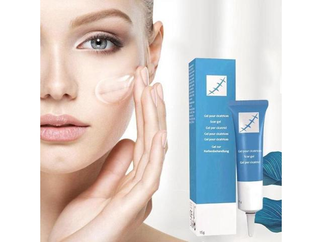 15ml Scar Removal Cream Face Cream For Face Acne Scar Stretch