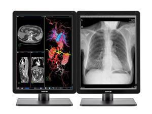Pair (x2) Barco Nio MDNC-3421 3MP 21'' Color LED General Radiology PACS Display (K9300340A)