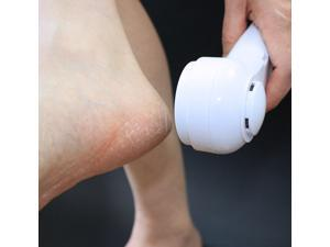 GentleTouch electric calluses remover